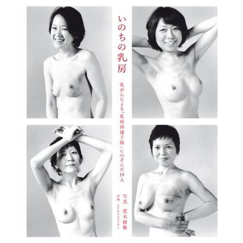 いのちの乳房 ~乳がんによる「乳房再建手術」にのぞんだ19人~