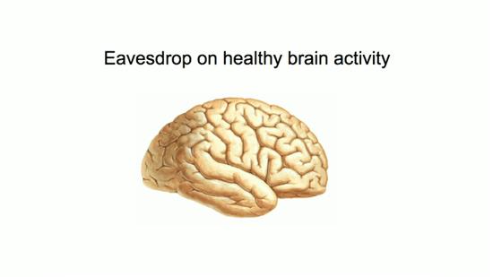 健康を害することなく 脳の活動を観察する