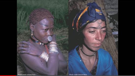 肌の色の違い
