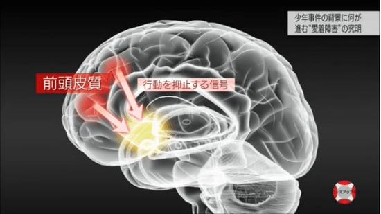 前頭皮質から「行動を抑制する信号」が出る