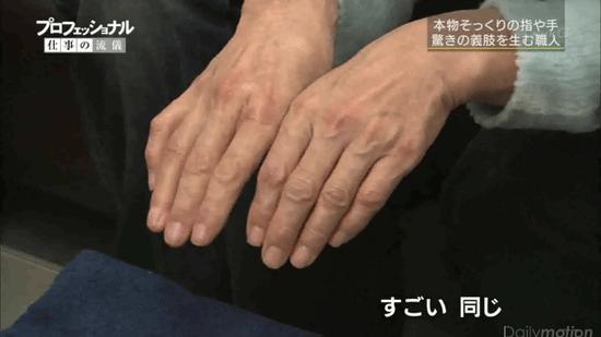 本物そっくりの指や手 驚きの義肢を生む職人