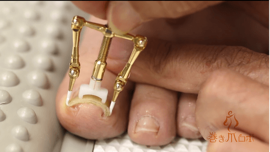 巻き爪ロボ