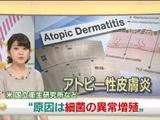 アトピー性皮膚炎 原因は細菌の異常増殖か