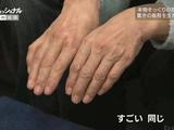 """本物そっくりの指や手、驚きの義肢を生み続ける職人/プロフェッショナル・仕事の流儀 「義肢は""""モノ""""ではない、""""その人そのもの""""/義肢装具士・林伸太郎」"""