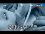 ヨウ素131による「初期・内部被曝データ」を意図的に隠蔽して、将来的に子供たちが発病した場合も「被曝の影響かどうか分からない」ことにしたい日本国政府/報道特集