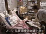NHK・クローズアップ現代 「難病新法 改革に揺れる患者たち」/新たな救済が期待される一方、これまで助成を受けてきた疾患は軽度の患者を中心に自己負担を増やされる