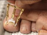 こりゃ凄い!痛~い「巻き爪」を、わずか30分で、しかも自分で治せる商品=「巻き爪ロボ」のデモ映像
