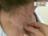 """カネボウの美白化粧品で白斑症状を訴える人は1万人を超えた/NHK・クローズアップ現代「最新報告 カネボウ""""美白""""問題」"""
