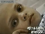 世界中で「核の被害者」は増え続けているが、大半の被曝者は隠されたままである/広島テレビ「プルトニウム元年・Ⅲ 隠される被ばく ヒロシマは…」(1993年放送)